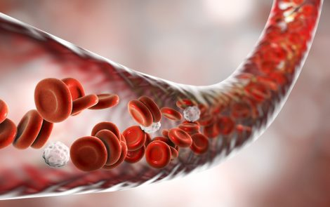 Abnormal Red Blood Cells Detected in Raynaud's Patients May Contribute to Disease, Study Suggests